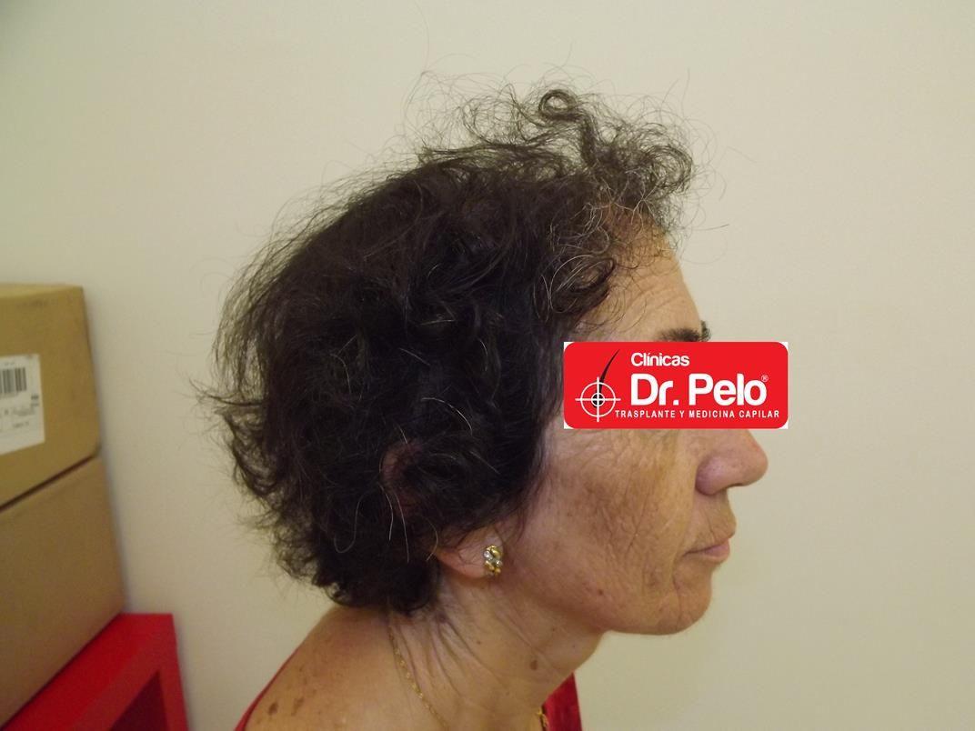 [Imagen: tratamiento-capilar-en-mujeres-16.jpg]