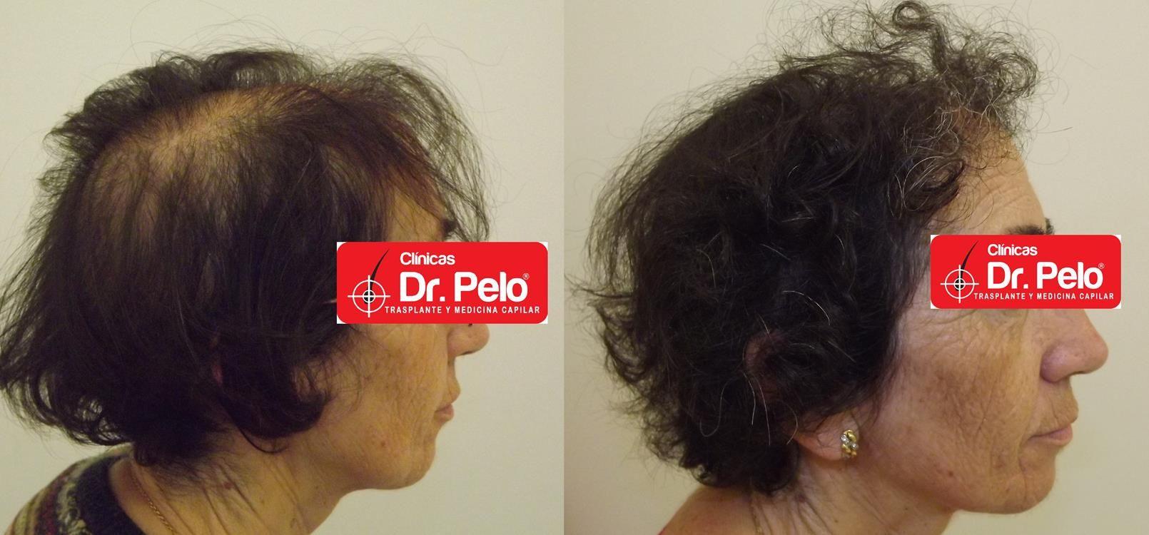 [Imagen: tratamiento-capilar-en-mujeres-18.jpg]