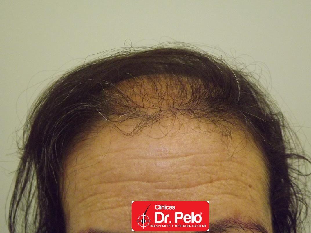 [Imagen: tratamiento-capilar-en-mujeres-5.jpg]