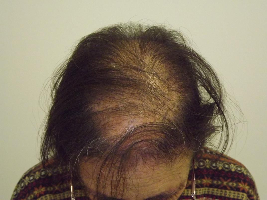 [Imagen: tratamiento-capilar-en-mujeres-6.jpg]