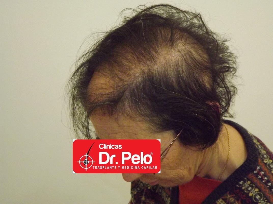 [Imagen: tratamiento-capilar-en-mujeres-9.jpg]