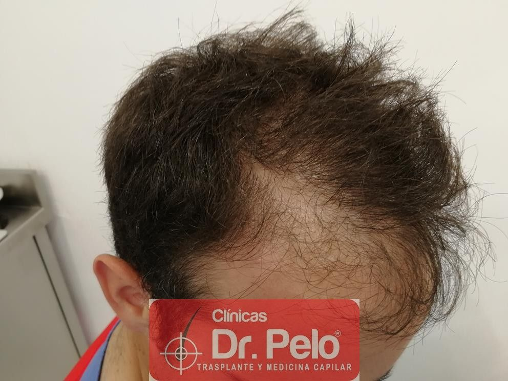 [Imagen: injerto-capilar-fue-en-dr-pelo-11-1.jpg]