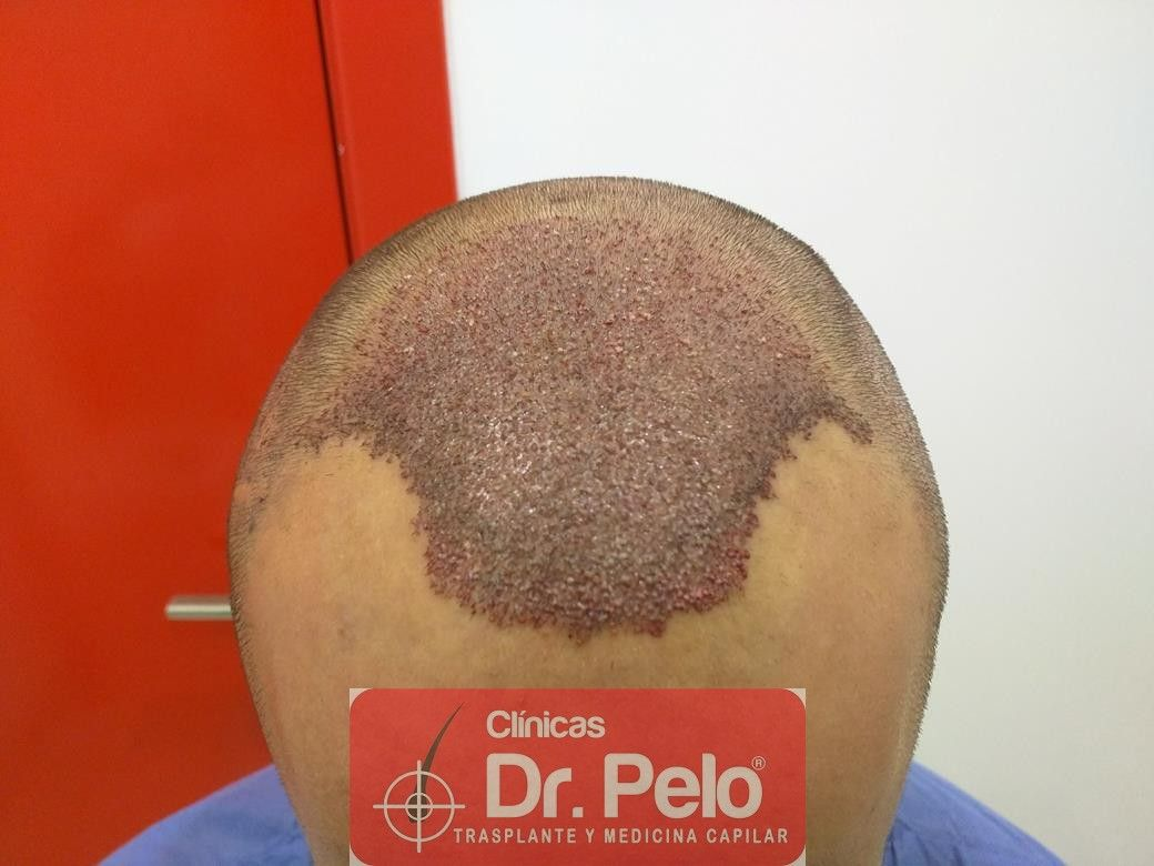 [Imagen: injerto-capilar-fue-en-dr-pelo-11.jpg]