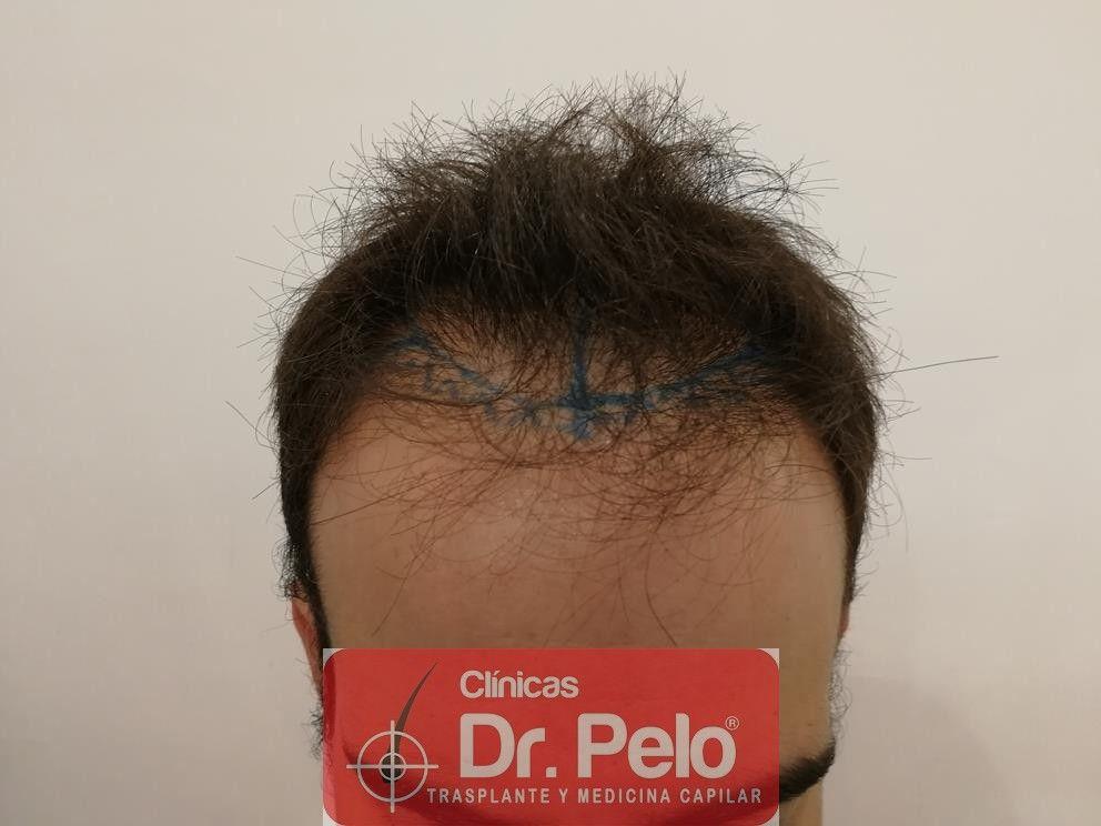 [Imagen: injerto-capilar-fue-en-dr-pelo-12-1.jpg]