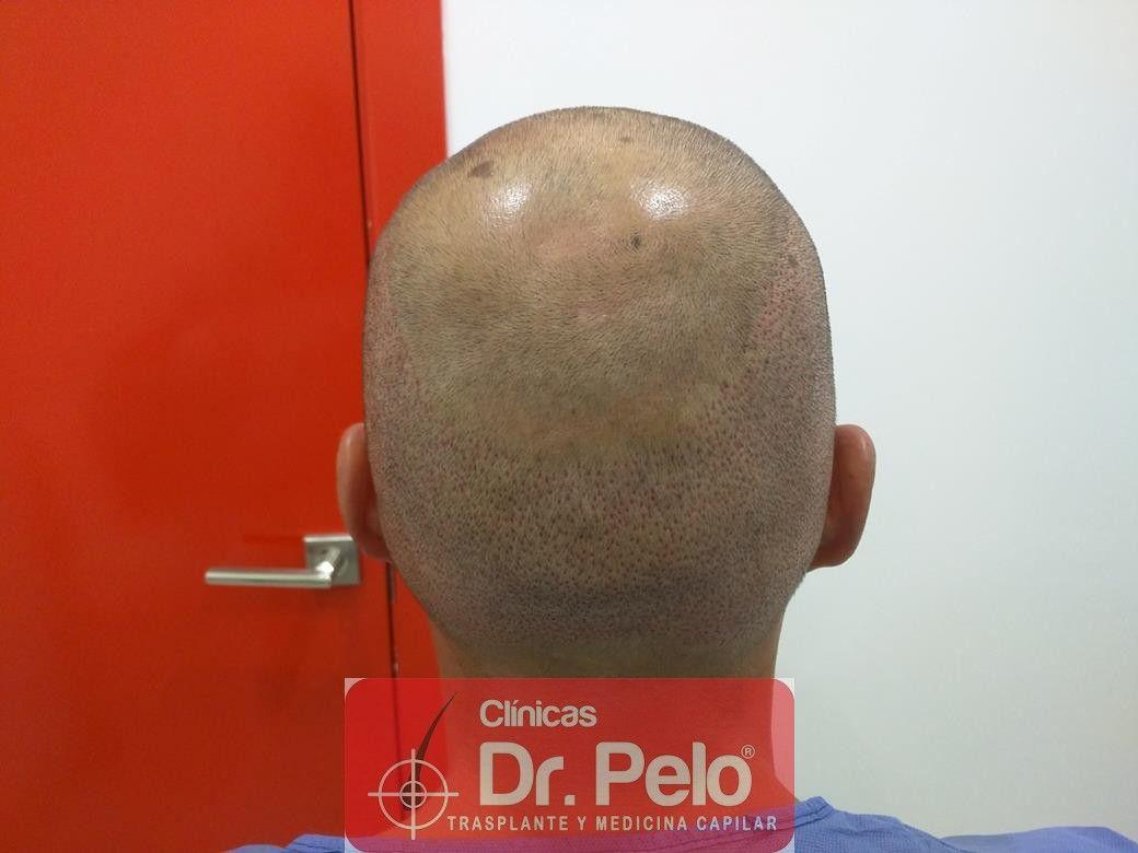 [Imagen: injerto-capilar-fue-en-dr-pelo-12.jpg]