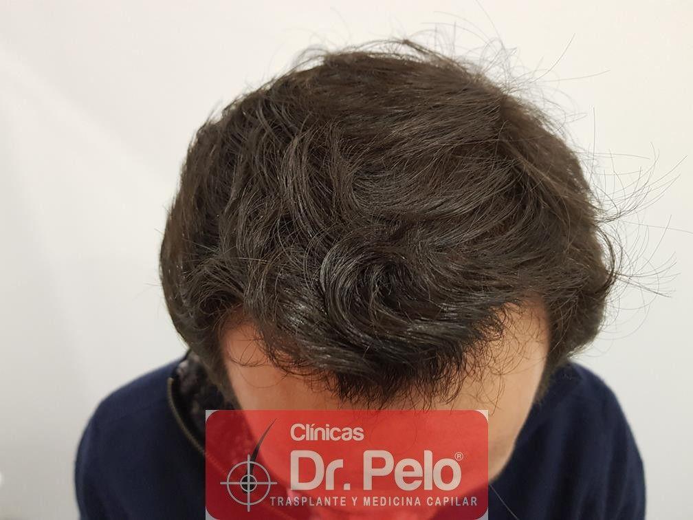 [Imagen: injerto-capilar-fue-en-dr-pelo-13.jpg]