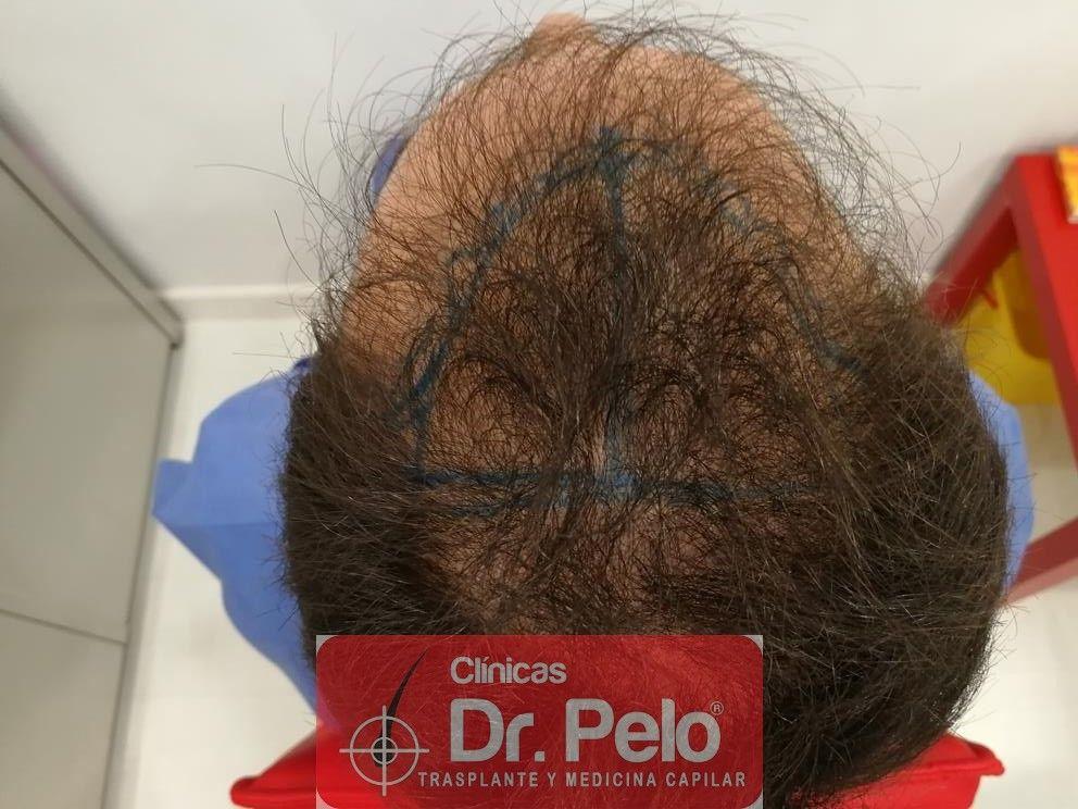 [Imagen: injerto-capilar-fue-en-dr-pelo-14-1.jpg]