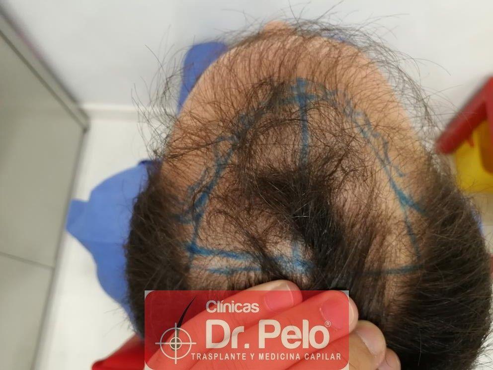 [Imagen: injerto-capilar-fue-en-dr-pelo-15-1.jpg]