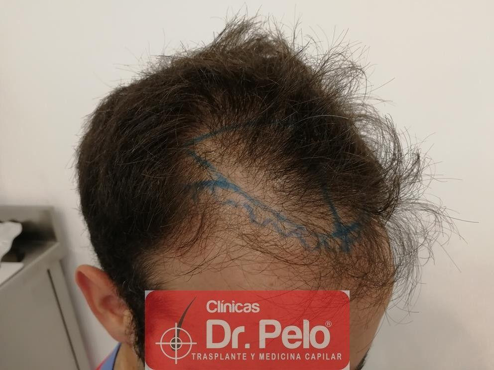 [Imagen: injerto-capilar-fue-en-dr-pelo-16-1.jpg]