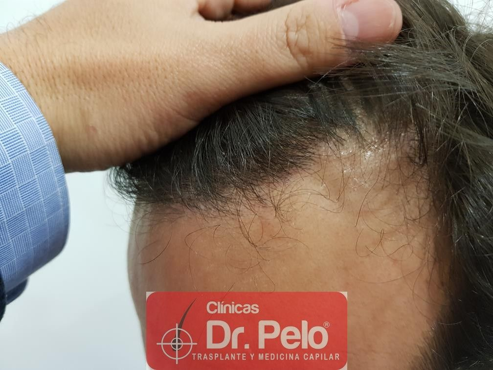[Imagen: injerto-capilar-fue-en-dr-pelo-16.jpg]