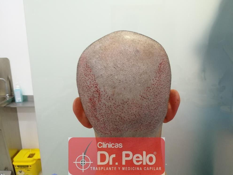 [Imagen: injerto-capilar-fue-en-dr-pelo-17-1.jpg]