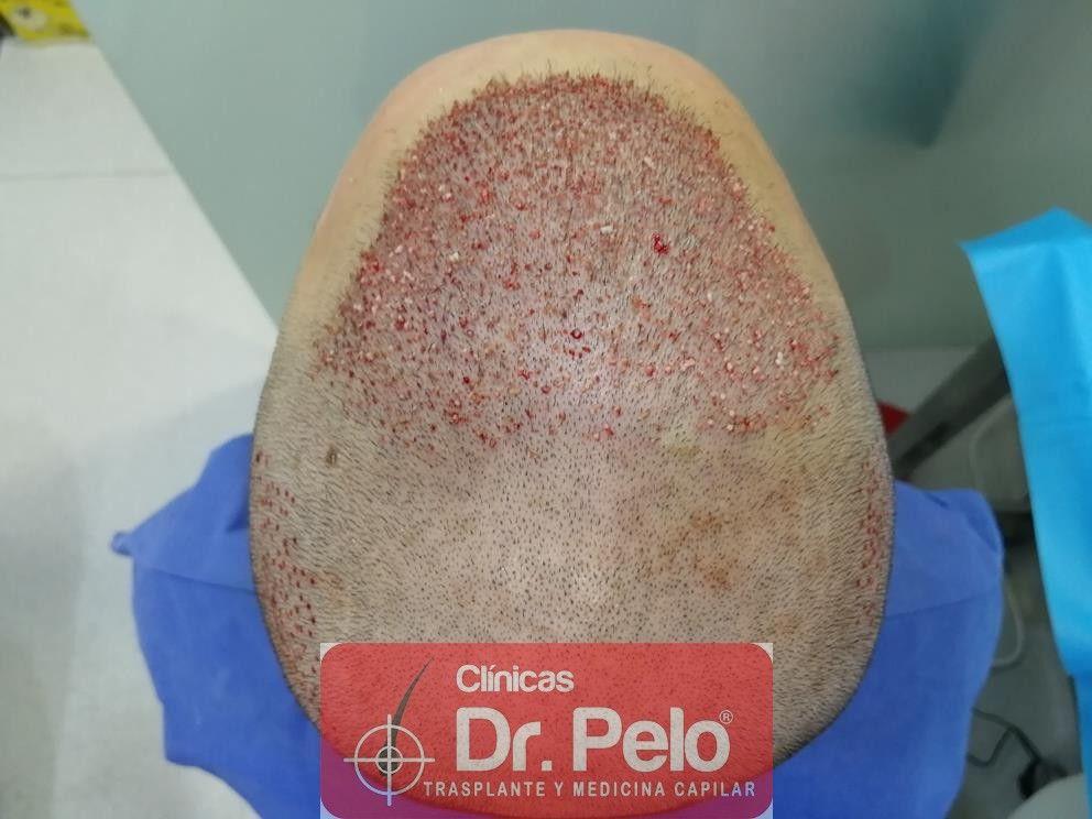 [Imagen: injerto-capilar-fue-en-dr-pelo-18-1.jpg]