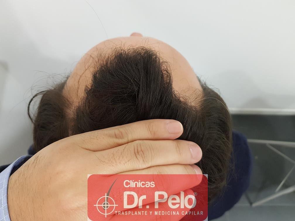[Imagen: injerto-capilar-fue-en-dr-pelo-18.jpg]