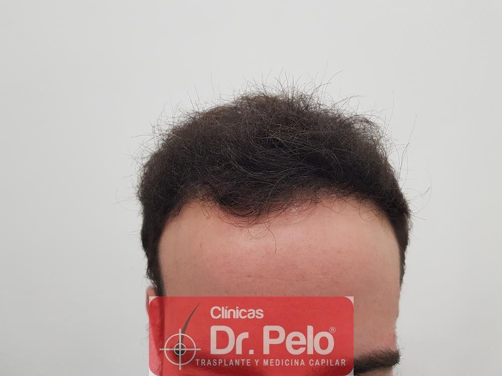 [Imagen: injerto-capilar-fue-en-dr-pelo-19-1.jpg]