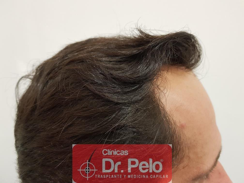 [Imagen: injerto-capilar-fue-en-dr-pelo-19.jpg]