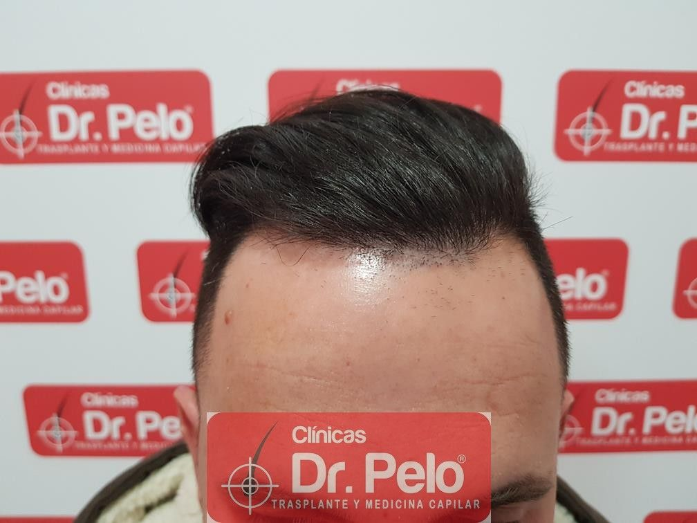 [Imagen: injerto-capilar-fue-en-dr-pelo-20-1.jpg]