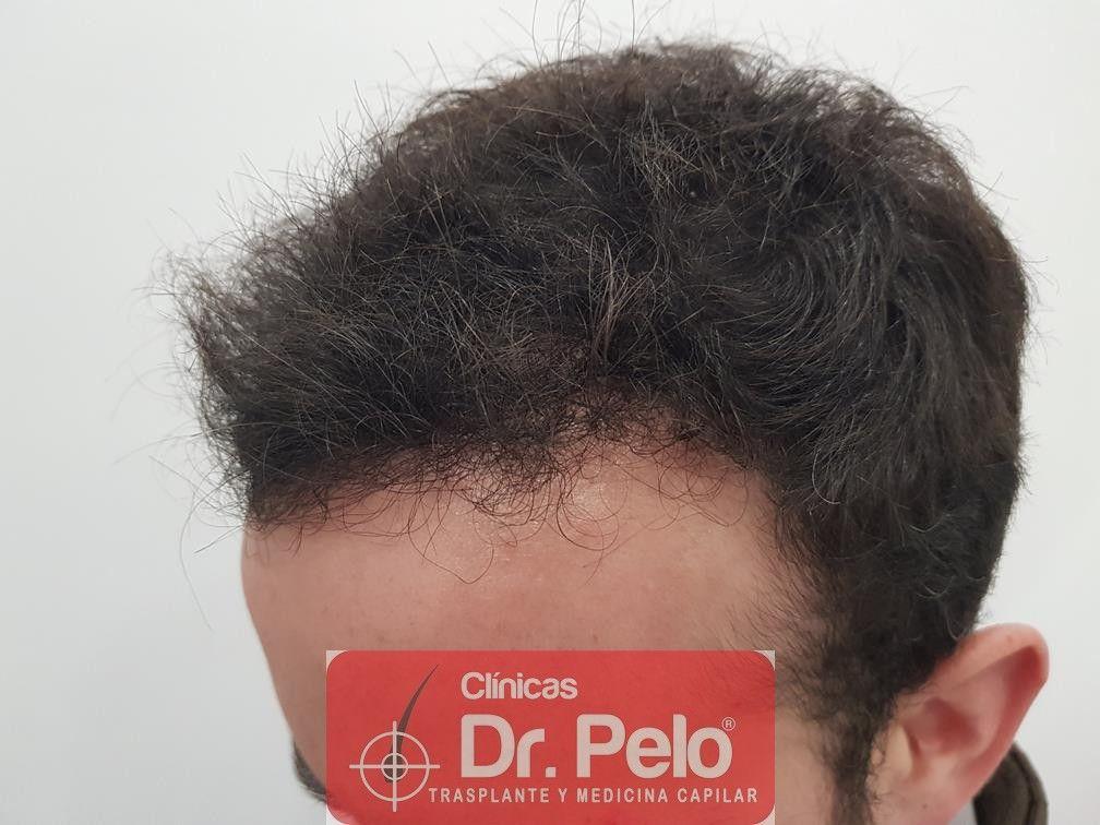 [Imagen: injerto-capilar-fue-en-dr-pelo-20-2.jpg]