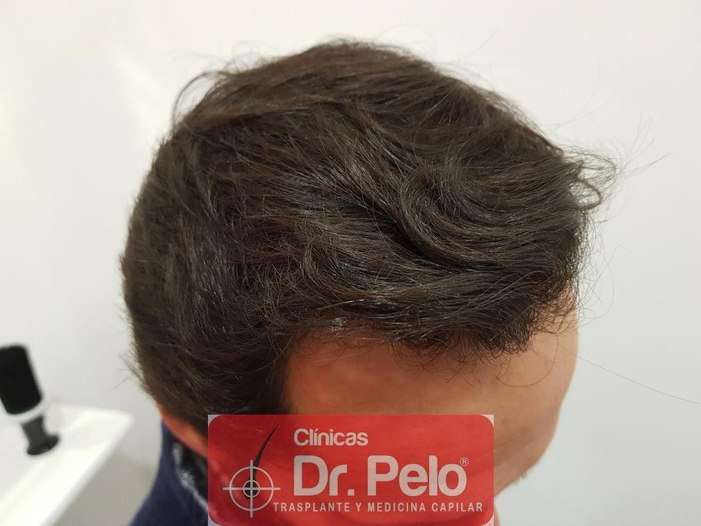 [Imagen: injerto-capilar-fue-en-dr-pelo-20.jpg]