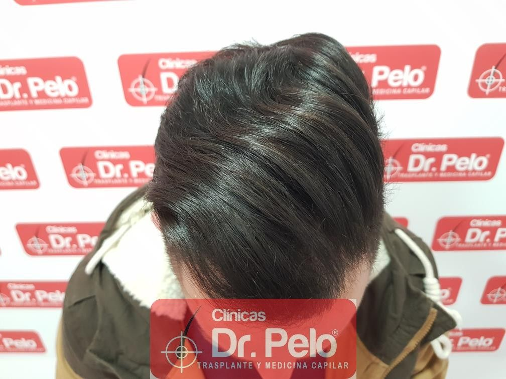 [Imagen: injerto-capilar-fue-en-dr-pelo-21-1.jpg]