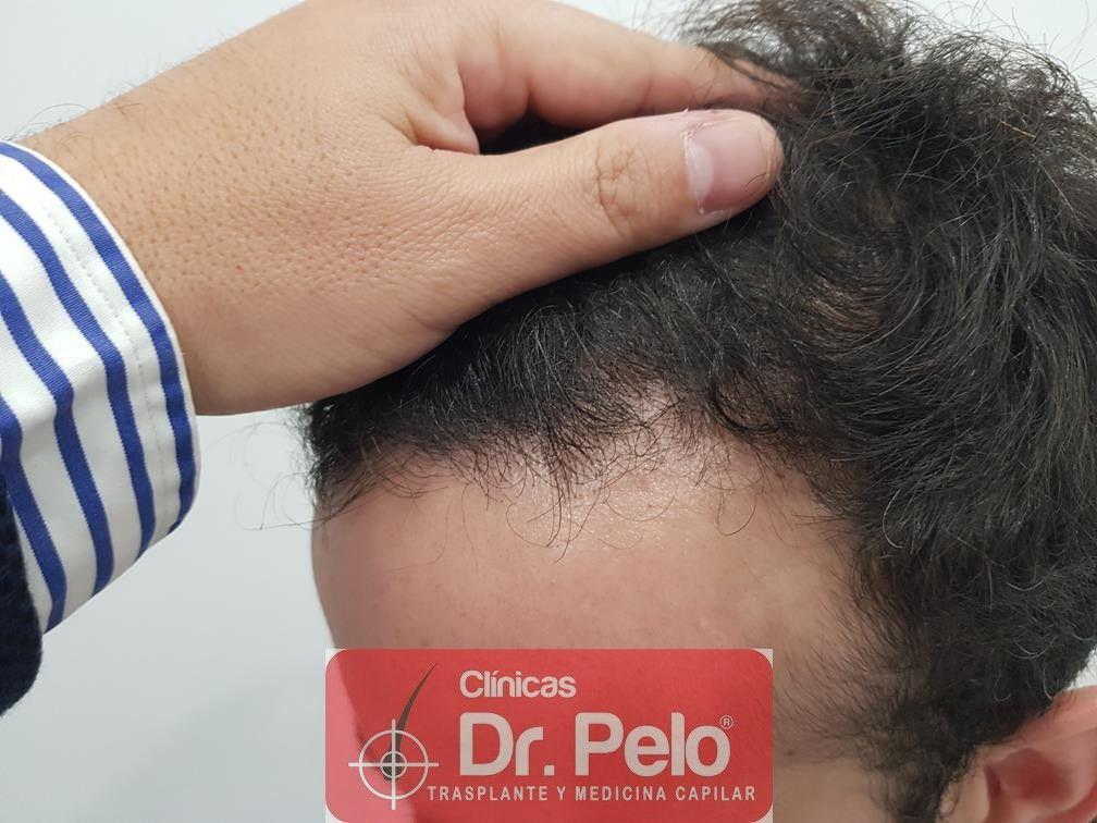 [Imagen: injerto-capilar-fue-en-dr-pelo-21-2.jpg]