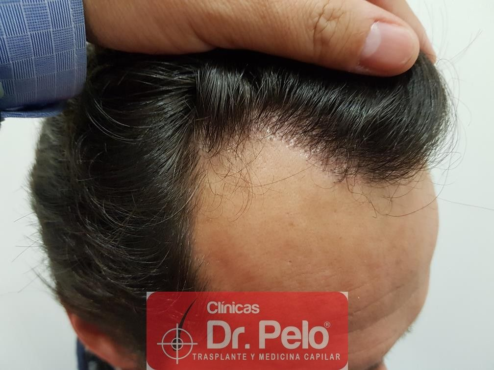 [Imagen: injerto-capilar-fue-en-dr-pelo-21.jpg]