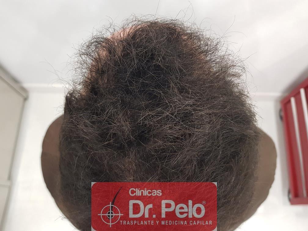 [Imagen: injerto-capilar-fue-en-dr-pelo-23-1.jpg]