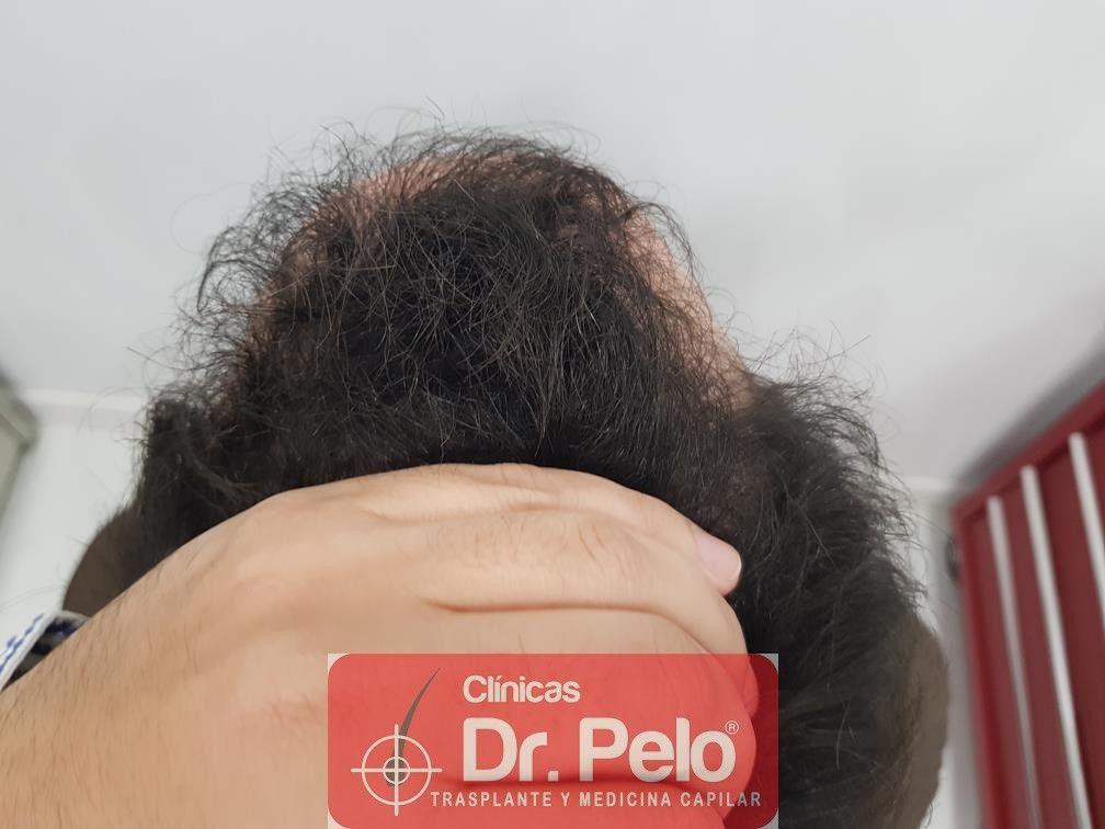 [Imagen: injerto-capilar-fue-en-dr-pelo-24-1.jpg]