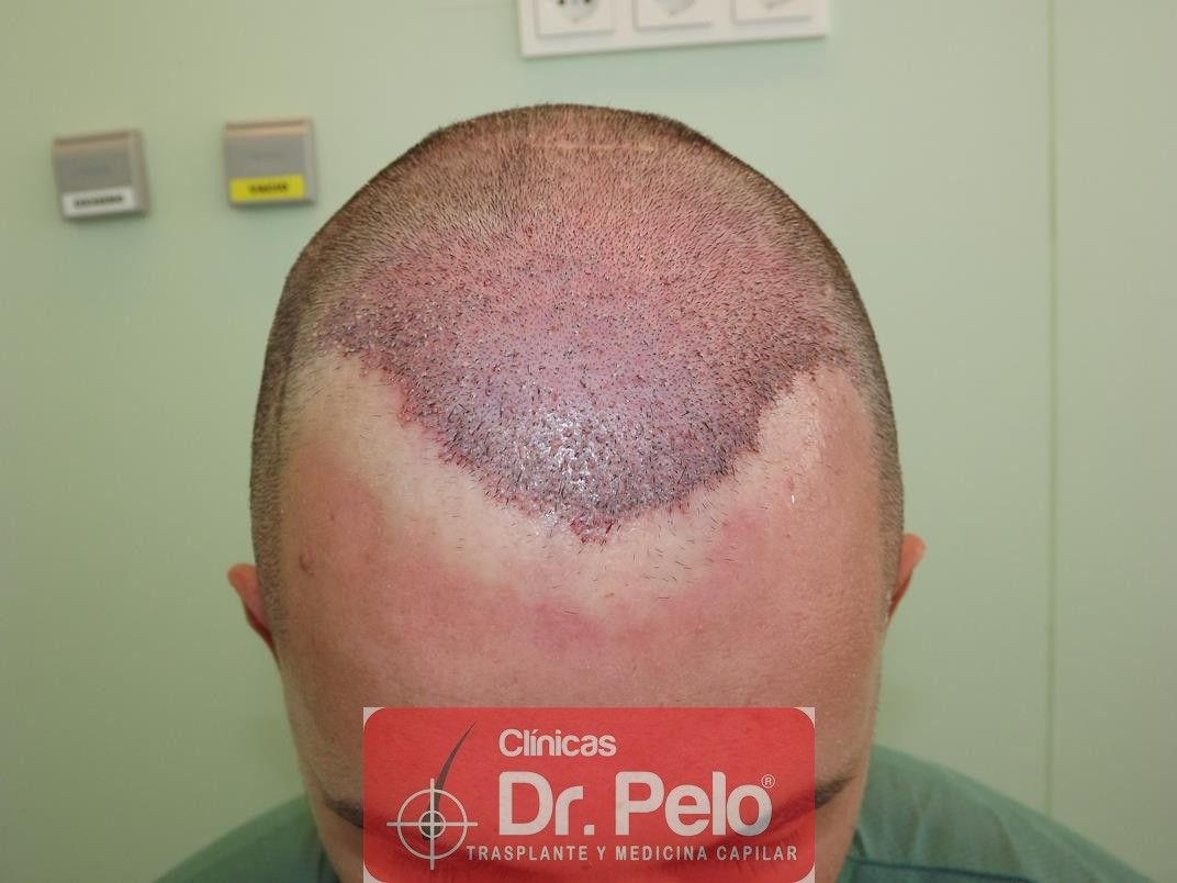 [Imagen: injerto-capilar-fue-en-dr-pelo-5-1.jpg]