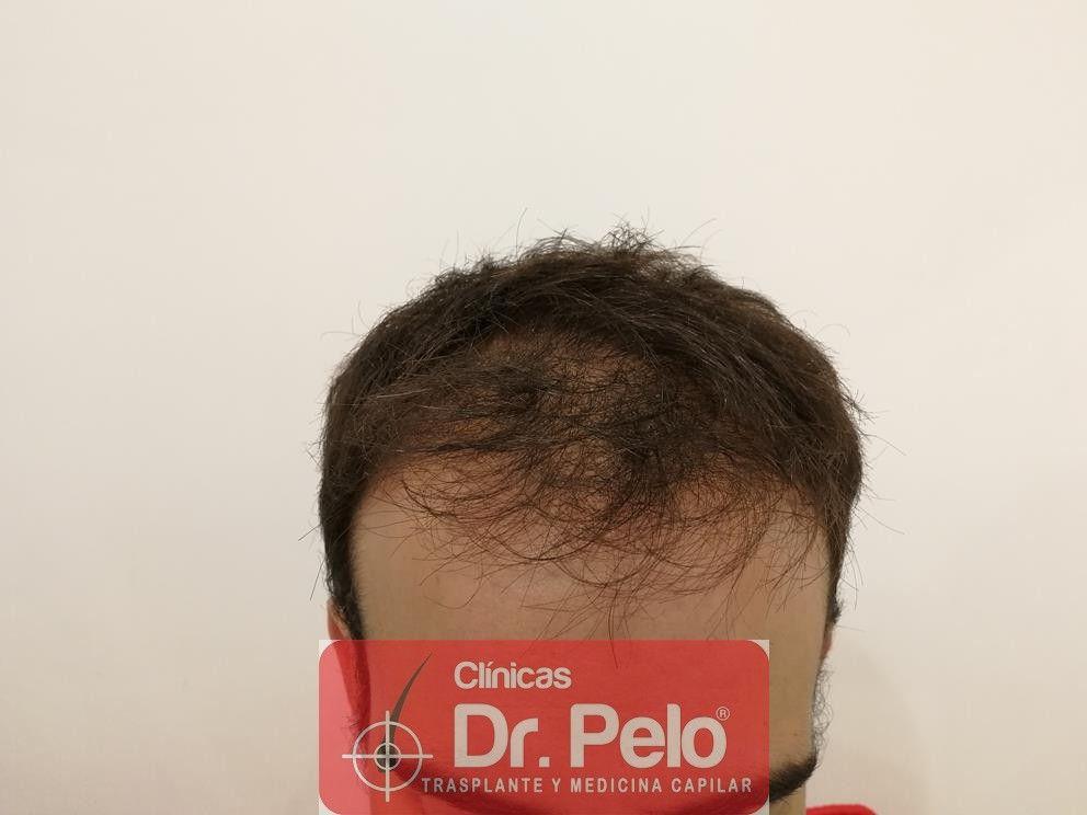 [Imagen: injerto-capilar-fue-en-dr-pelo-5-2.jpg]