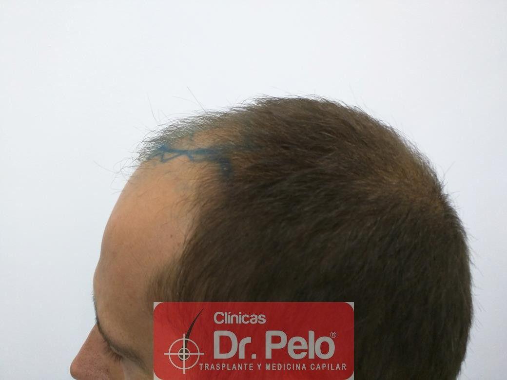 [Imagen: injerto-capilar-fue-en-dr-pelo-5.jpg]