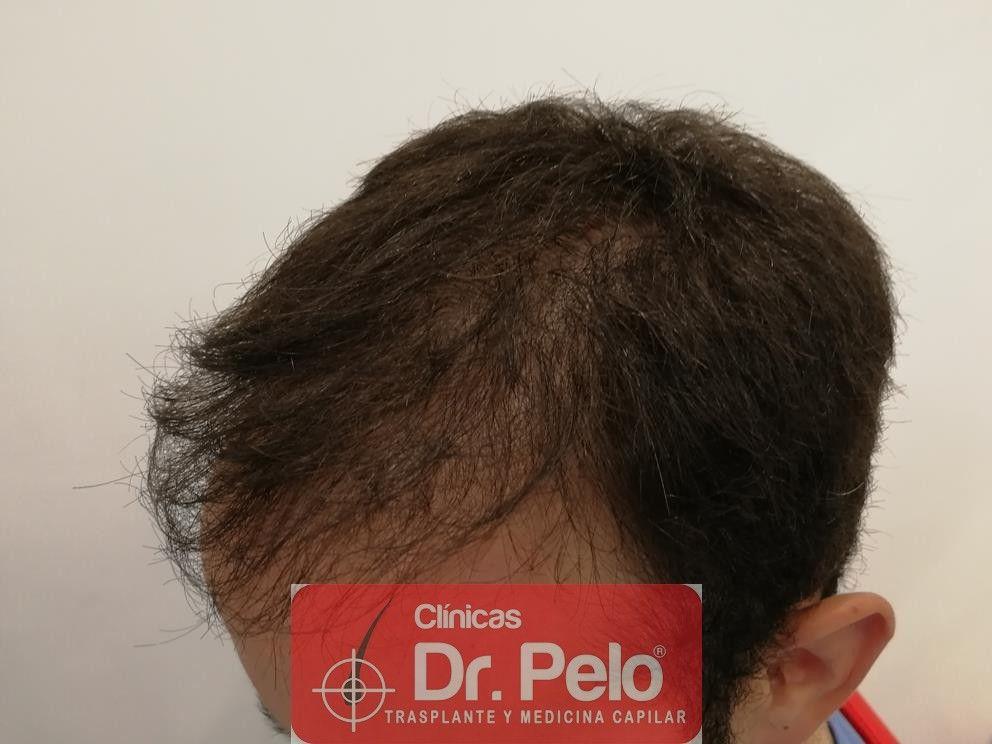 [Imagen: injerto-capilar-fue-en-dr-pelo-7-1.jpg]