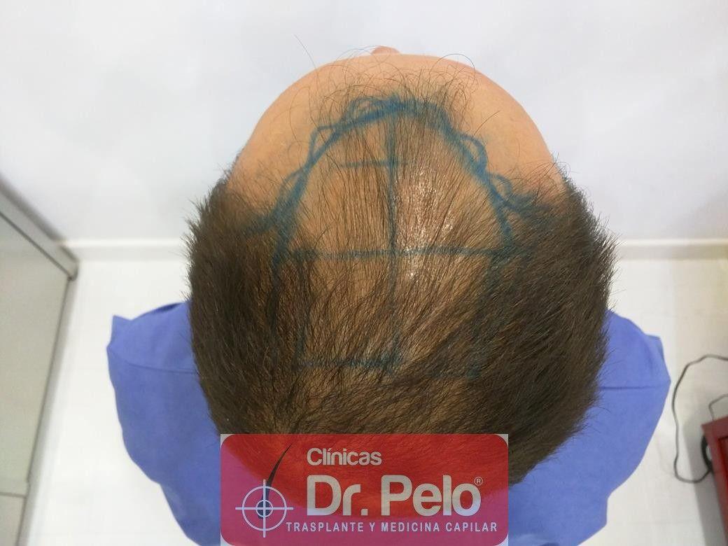 [Imagen: injerto-capilar-fue-en-dr-pelo-7.jpg]