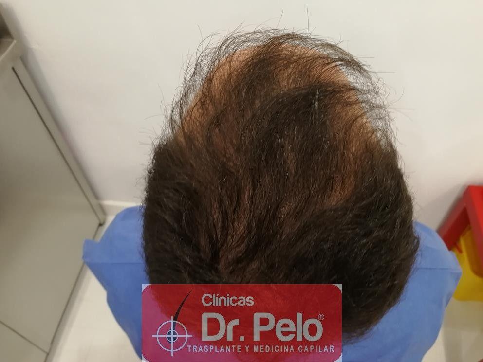 [Imagen: injerto-capilar-fue-en-dr-pelo-9-1.jpg]
