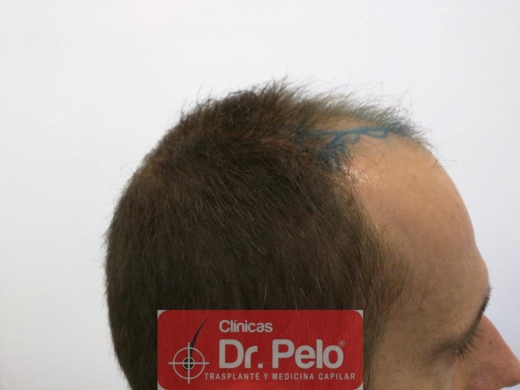 [Imagen: injerto-capilar-fue-en-dr-pelo-9.jpg]