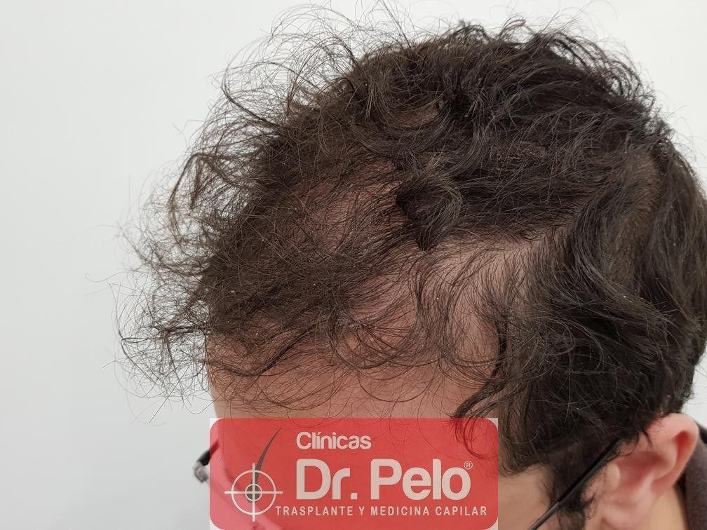 [Imagen: tratamiento-capilar-en-dr-pelo-10.jpg]