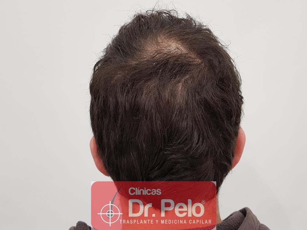 [Imagen: tratamiento-capilar-en-dr-pelo-11.jpg]