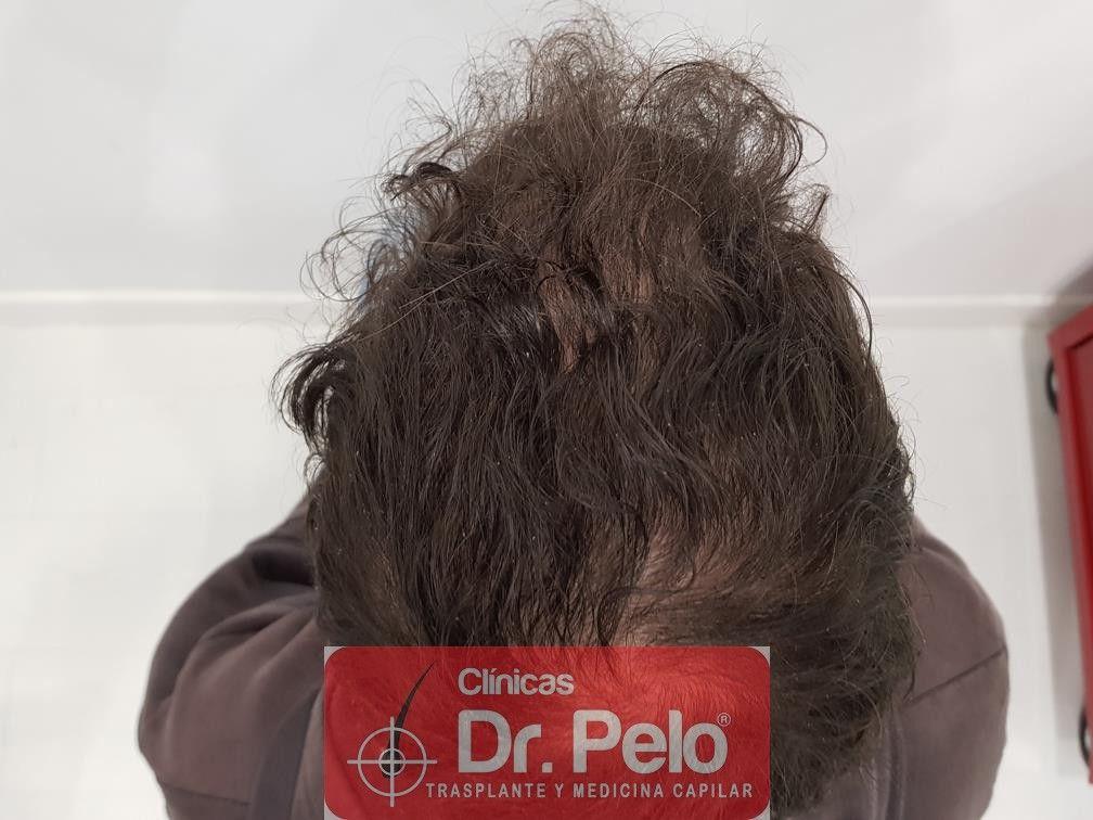 [Imagen: tratamiento-capilar-en-dr-pelo-12-1.jpg]