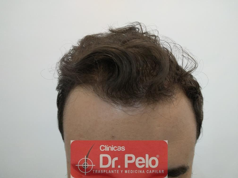[Imagen: tratamiento-capilar-en-dr-pelo-12.jpg]