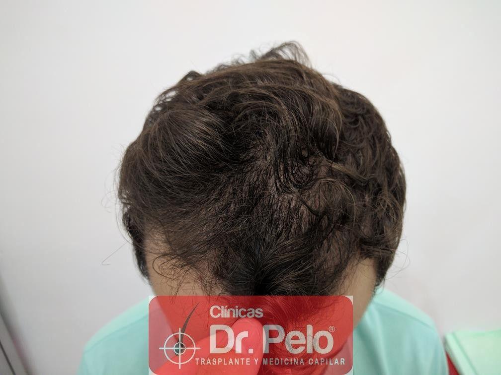 [Imagen: tratamiento-capilar-en-dr-pelo-14.jpg]