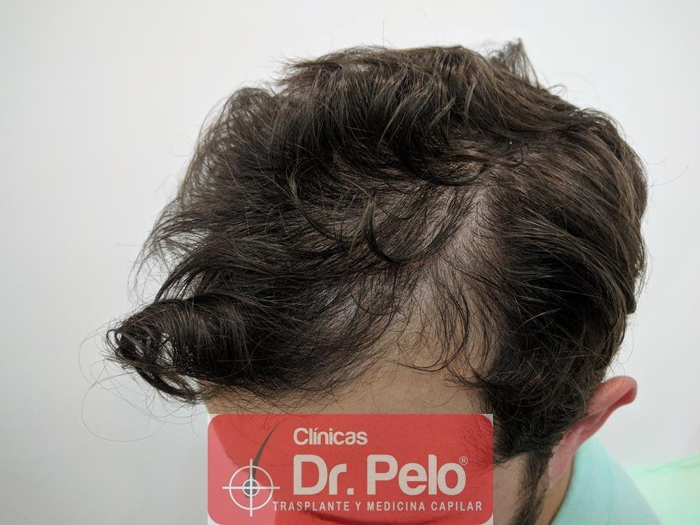 [Imagen: tratamiento-capilar-en-dr-pelo-15.jpg]