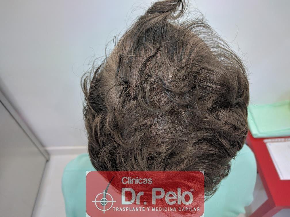[Imagen: tratamiento-capilar-en-dr-pelo-17.jpg]
