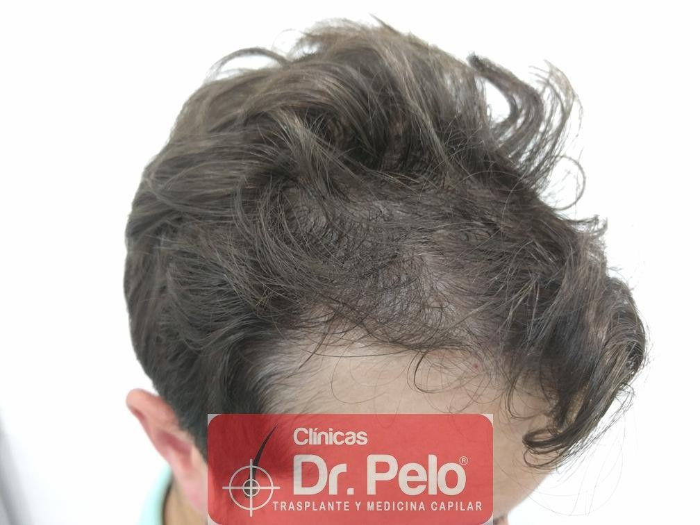 [Imagen: tratamiento-capilar-en-dr-pelo-19.jpg]