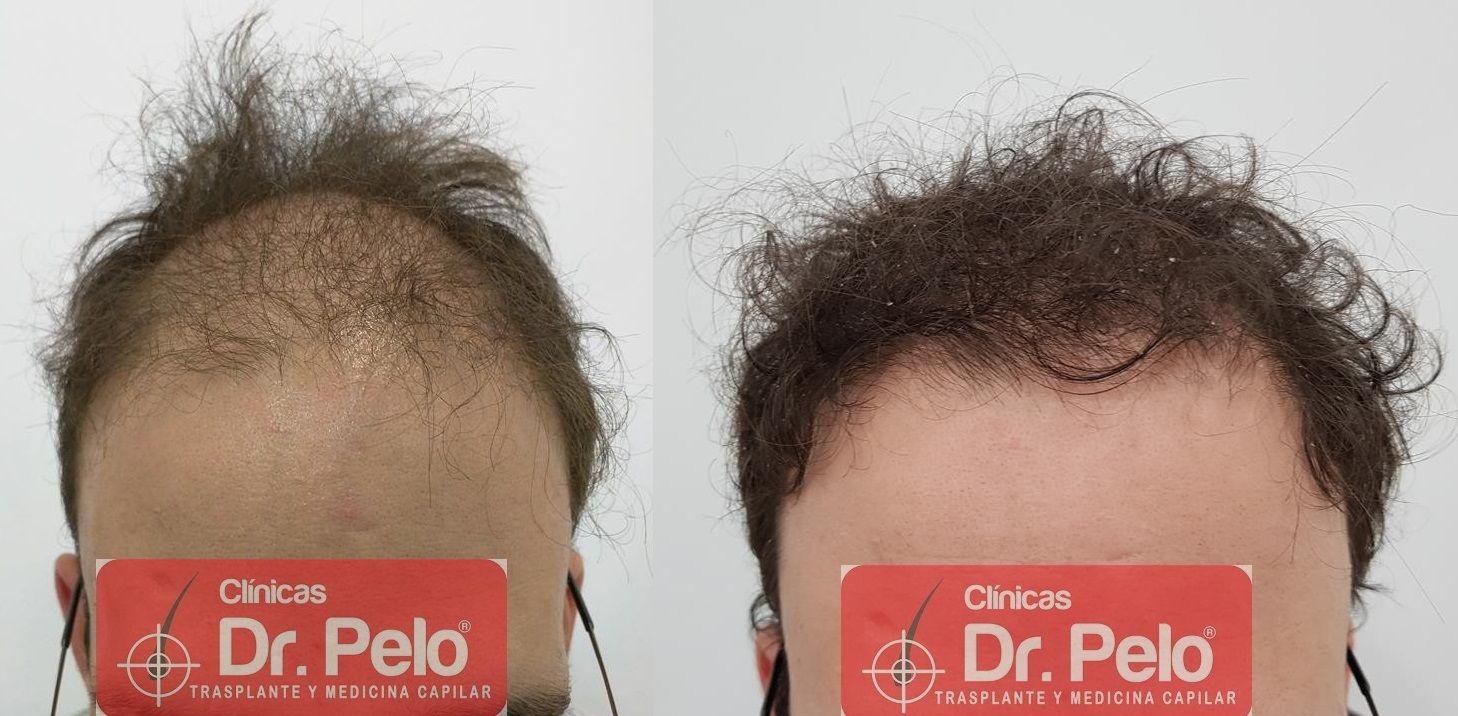 [Imagen: tratamiento-capilar-en-dr-pelo-20-1.jpg]