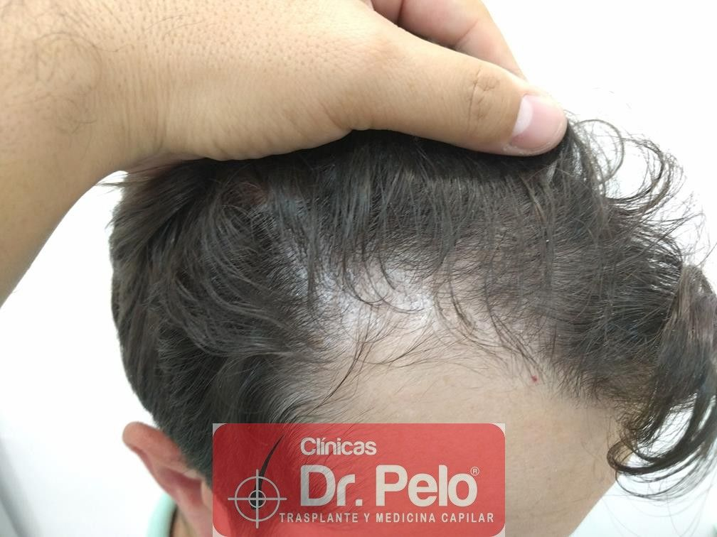 [Imagen: tratamiento-capilar-en-dr-pelo-20.jpg]