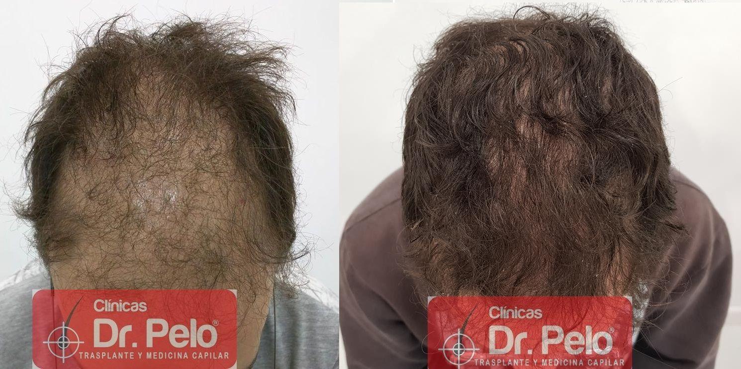 [Imagen: tratamiento-capilar-en-dr-pelo-21.jpg]