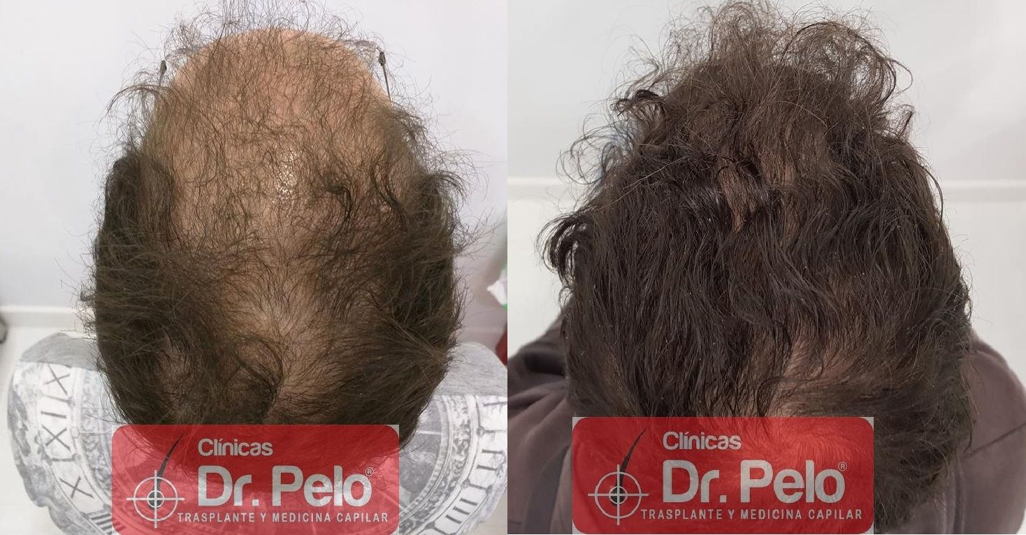 [Imagen: tratamiento-capilar-en-dr-pelo-22-1.jpg]
