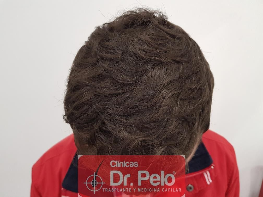 [Imagen: tratamiento-capilar-en-dr-pelo-23.jpg]