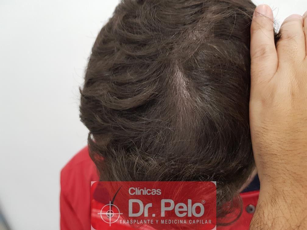 [Imagen: tratamiento-capilar-en-dr-pelo-24.jpg]