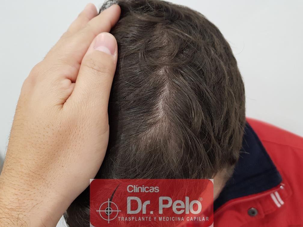 [Imagen: tratamiento-capilar-en-dr-pelo-25.jpg]