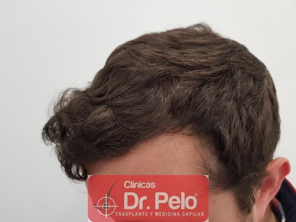 [Imagen: tratamiento-capilar-en-dr-pelo-26.jpg]
